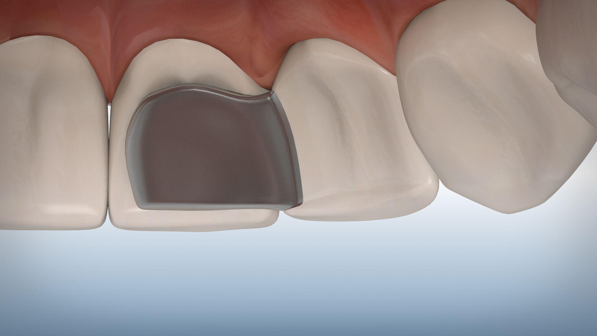 Atemberaubend 3d Kopf Und Hals Anatomie Für Zahnmedizin Ideen ...
